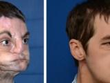 Picture: Човекът с първото в света трансплантирано лице го показа