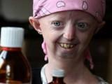 Picture: Ужас: 15-годишна живее в тяло на 100-годишна старица! (ВИДЕО)
