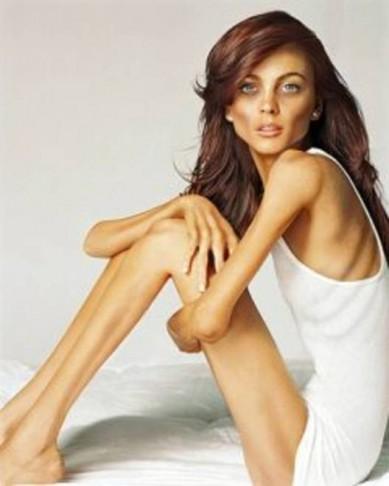 Перничанка умря от анорексия