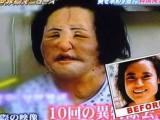 Picture: Ужас! Жена се обезобрази сама с любителска пластична процедура