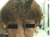 Picture: УЖАС! Брат заби нож в лицето на сестра си (ФОТО +18)