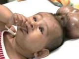 Picture: Ужас!!! Вижте какво расте в главата на дете! (ВИДЕО)