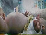 Picture: ШОК! Бременно 2-годишно момче роди своя близнак! (ВИДЕО)