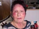 Picture: Ужас! Крем против бръчки обезобрази лицето на потребителка!
