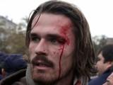 Picture: Битият студент: Нямам проблем с главата, освен че е ударена