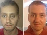 Реконструкция на лице
