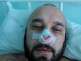Picture: Мишо Шамара с разбит нос (ФОТО)
