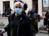 Picture: Одеса: 43 - ма загинали, 214 са пострадали