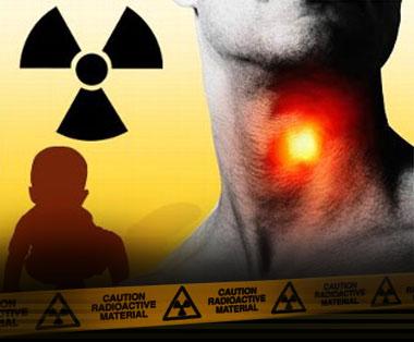 Поставят детектори за радиация