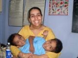 Picture: Чудо! Сиамски близнаци живеят в едно тяло 9 години