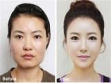 Picture: Ужас! Жени си трошат челюстите, за да станат красиви
