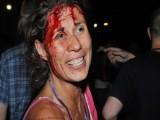 Picture: Ранените се мазали с театрална кръв – твърди медия на Пеевски