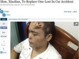 Picture: Медицинско чудо: Нос расте на чело на китаец, оцелял след катастрофа