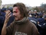 Picture: Задържаха окървавеният студент пред Факултета по журналистика