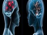 Picture: Учени: За вечния въпрос за разликата в мозъка на половете?