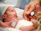 Picture: Днес е световният ден на недоносените деца